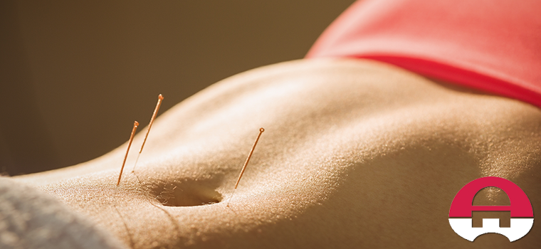 acupuncture for irritable bowel syndrome columbia maryland