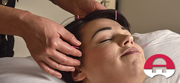 acupuncture for migraine headaches featured