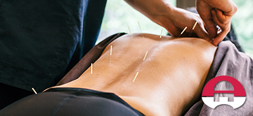 western acupuncture therapy columbia maryland featured